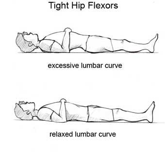 Hip Flexors As A Source Of Neck Back Pain Camarillo